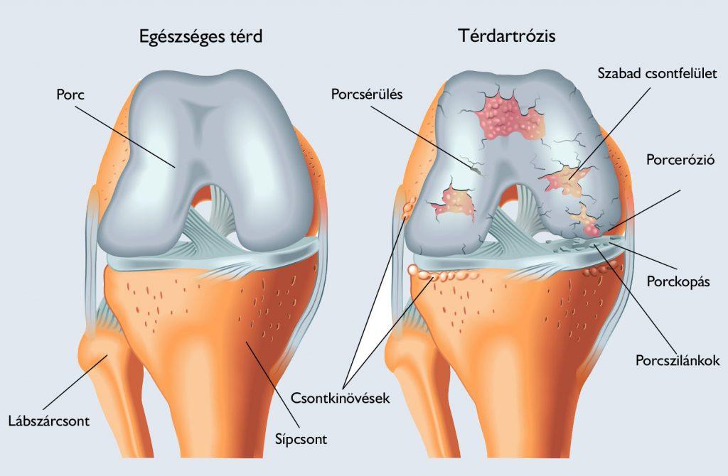 a térd artrózisának mértéke