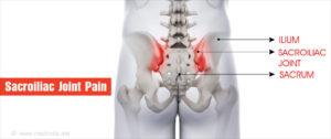 a térd ligamentitisz ligamentumának gyulladása ízületi fájdalomfürdő áttekintés