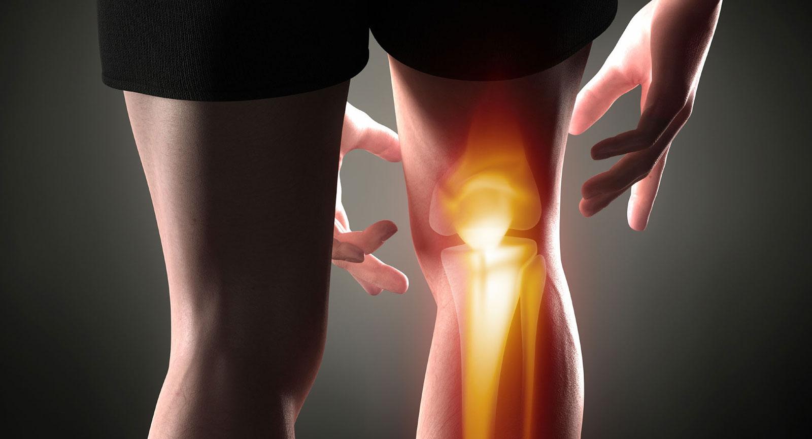 foci térd artrózisával