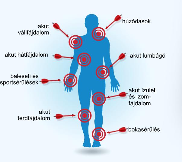 artrózisos gyógyszerek kezelése