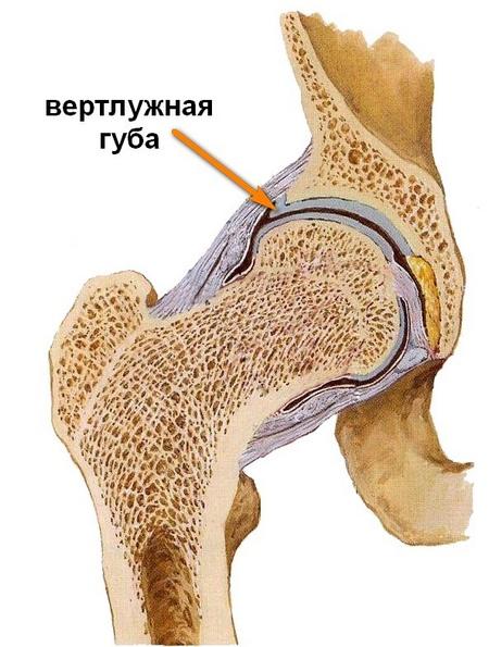 időskorúak csípőízületi gyulladása ízületi polyarthritis kezelés