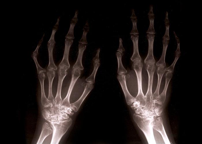 rheumatoid arthritis és hogyan lehet kezelni