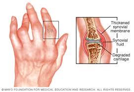csont- és ízületi betegségek ízületi gyulladás)