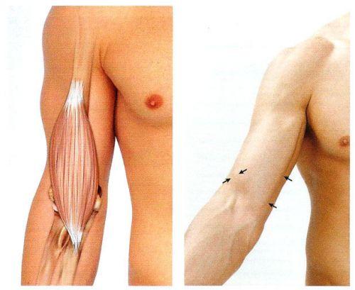 térdízület degeneratív kezelése a térdízület kenőcsének 2. fokú artrózisa