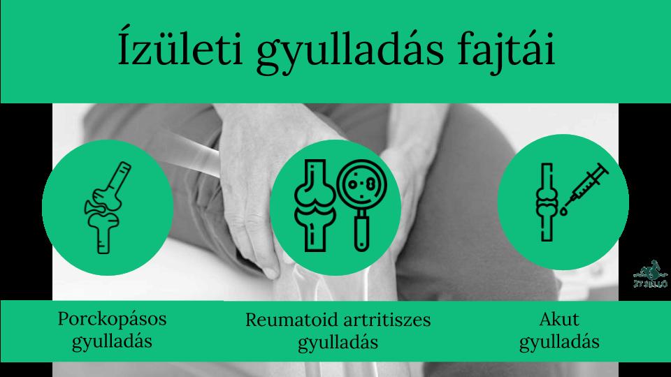 a térd és a vállízület izületi gyulladásának kezelése)