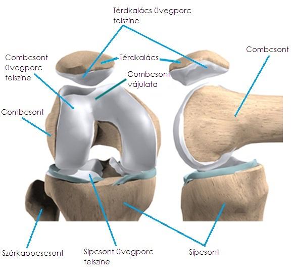 hogyan lehet segíteni a térd artrózisában)