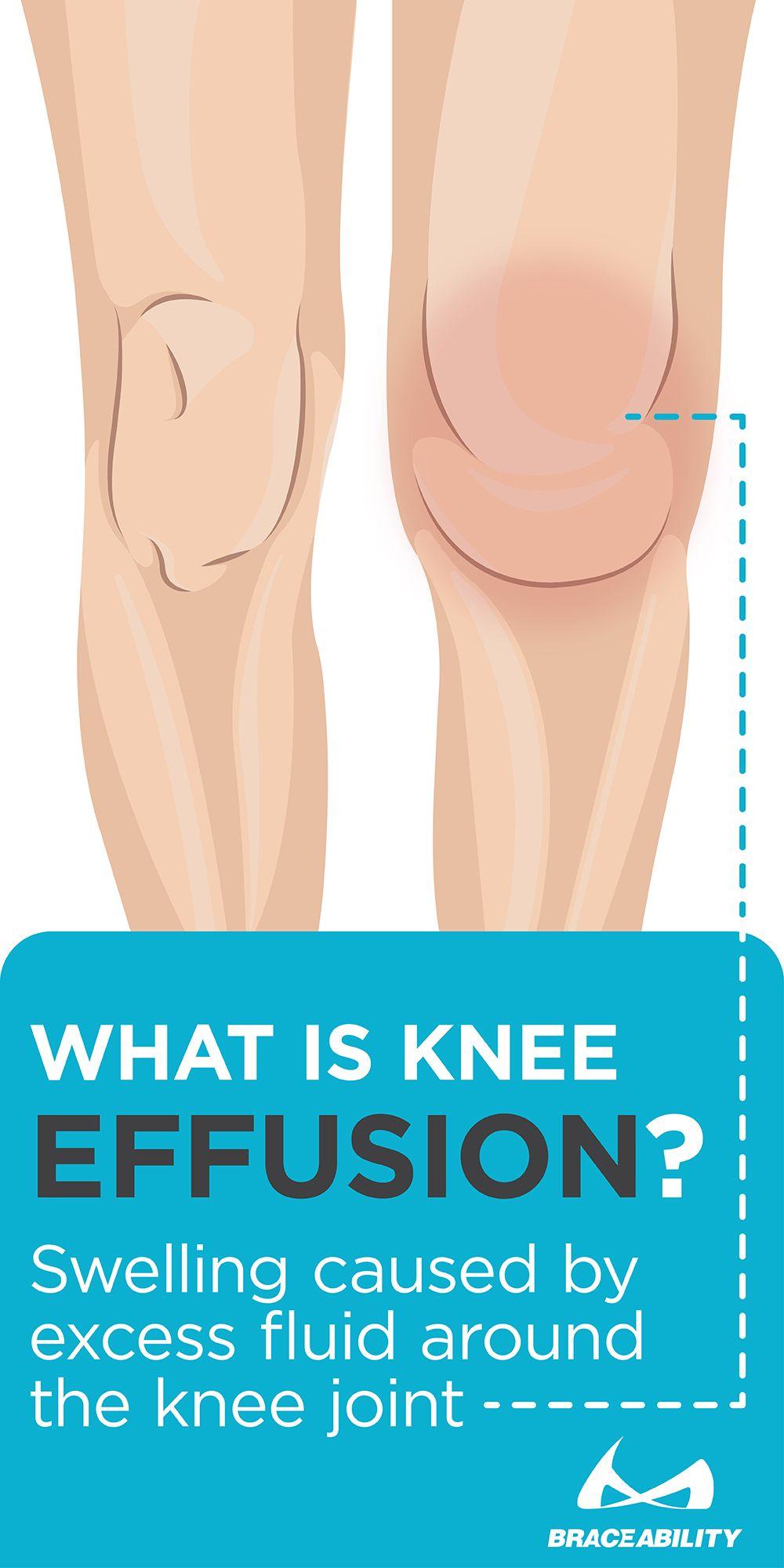 Az ember lába csontjának szerkezete. Általános anatómiai információk az emberi láb szerkezetéről