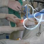 bokaízületek deformáló artrózisának kezelése)