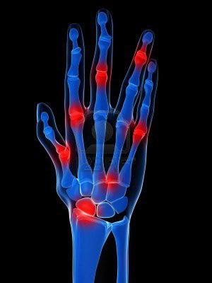 ujj izületi fájdalmak csípőízület dysplasztikus artrózisa