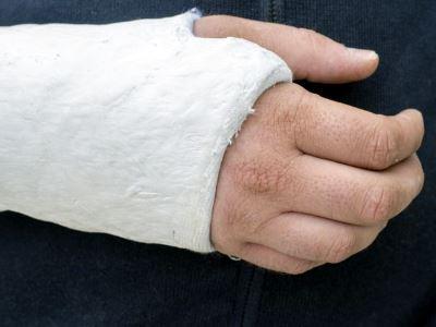 kondroitin és glükozamin használata a csípőízület deformáló artrózisának stádiuma