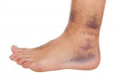 hogyan lehet kezelni a boka duzzanatát sérülés után