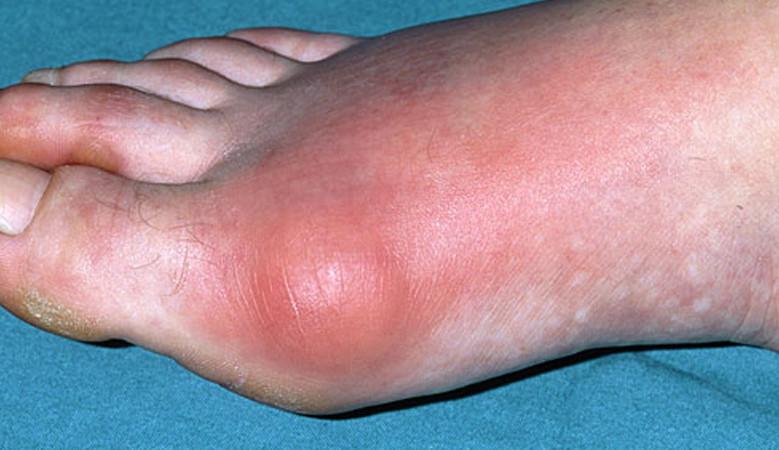 duzzanat a lábakon az ízület után