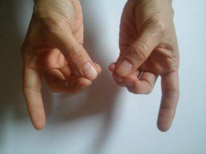 ízületi fájdalom a kéz kisujján)