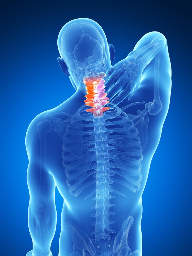 nyaki merevség és fájdalom térdízületek fáj 75 év