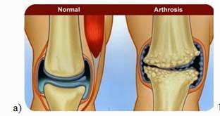 ami azt jelenti, hogy a térdízület artrózisa 2 fok)