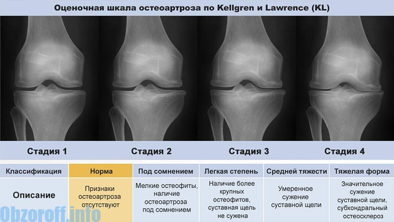 Enyhíti a lábujjízület gyulladását