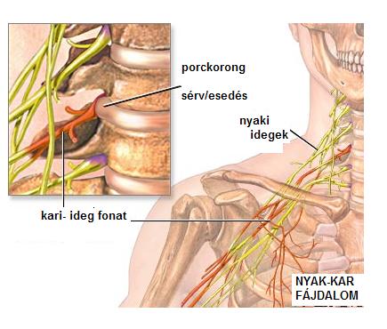 nyaki gerinc kezelésének necrovertebrális osteoarthritis