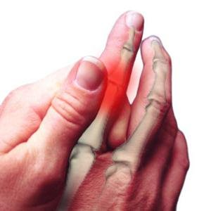 a kis ujj ízülete fáj, ha meghajlik)