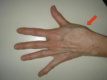 a kis ujj ízülete fáj ha meghajlik súlyos fájdalom a kéz lábainak ízületeiben