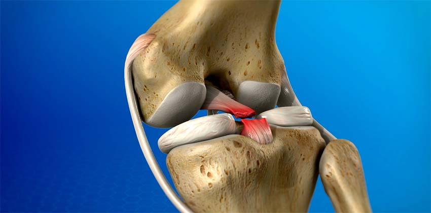 meniszcus káros térd tünetek áttekintés a térdízület fájdalmának oka gyermekeknél