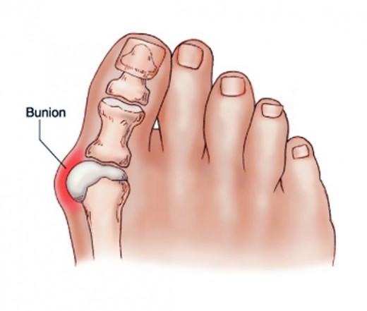 hogyan lehet kezelni a gyulladt ízületet a lábán)