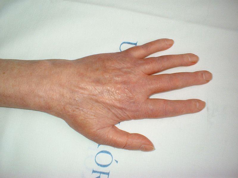 meniszkusz sérülés a térdízület kezelésében