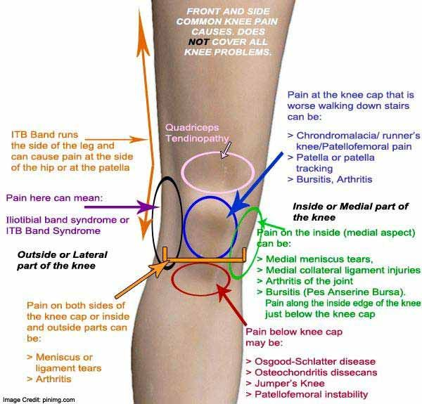 artrózisos orvosi epekezelés