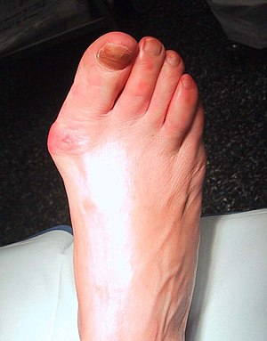 left first mtp osteoarthritis icd 10)
