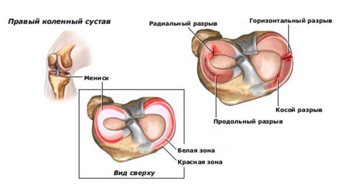 Könyökzsinór-tünetek és kezelés, diagnózis és megelőzés - Masszázs July