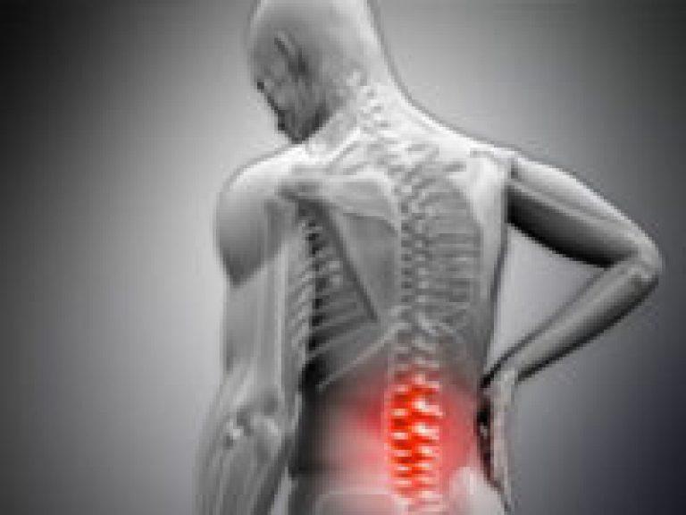 interkostális artrosis kezelése)