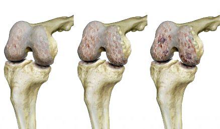 koreai orvoslás az artrózis kezelésében deformáló artrózis kezelésére
