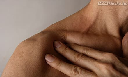 vállfájdalom homeopátia