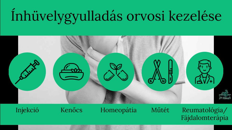 a legjobb kenőcsök a nyaki csontritkulás kezelésére)