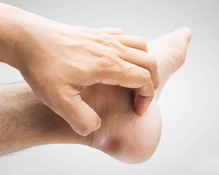 fáj a láb sarkán lévő ízület