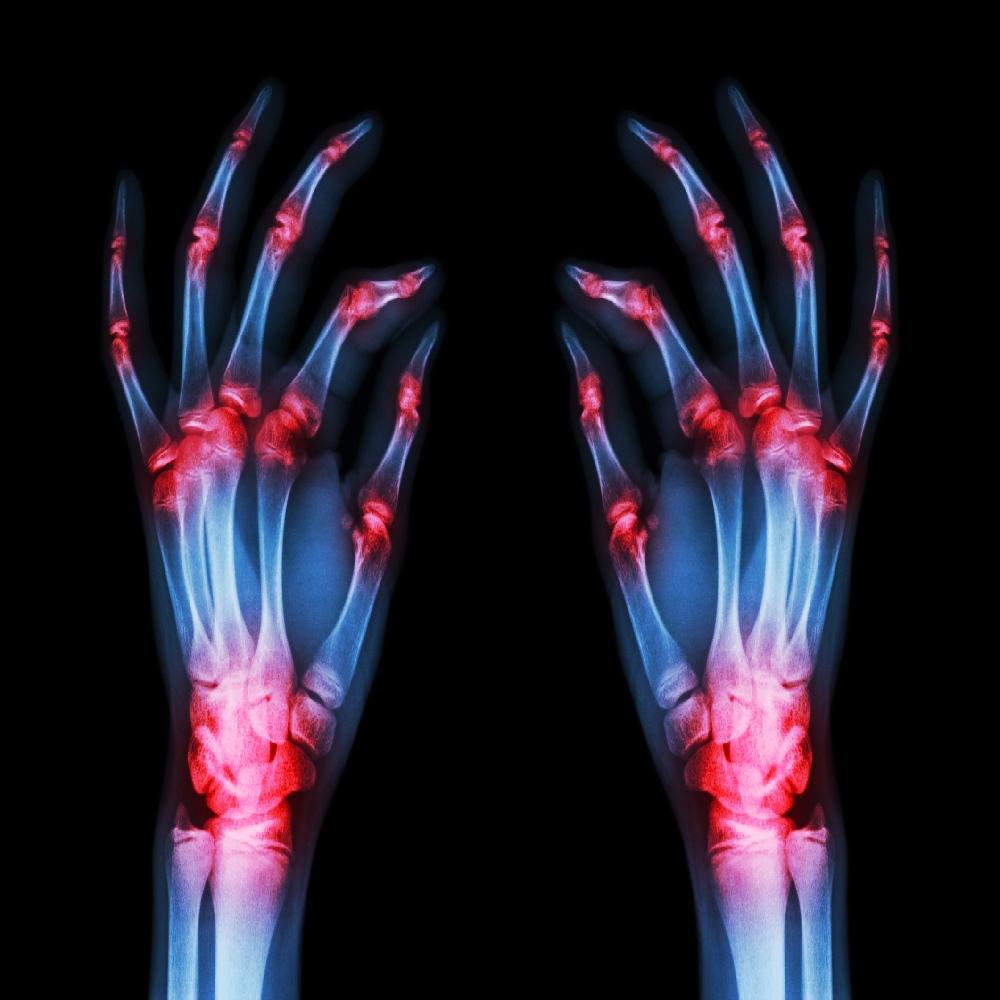az ízületek gennyes artrózisa)