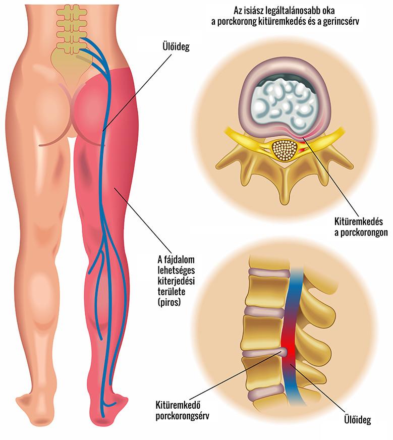 előrehajlás esetén a csípőízület fájdalma)