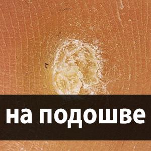 lábujjhártya-gyógyszer