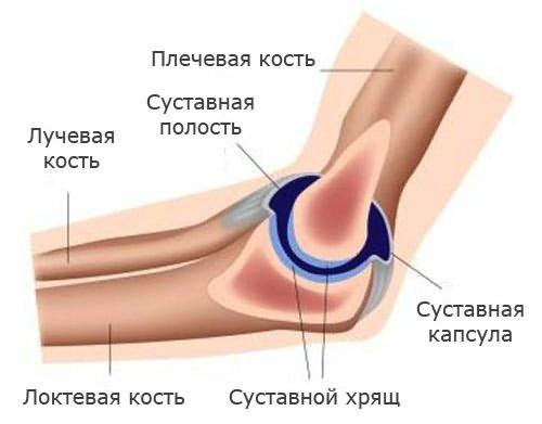 akut fájdalom a bal könyökízületben)