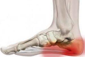 a nagy lábujj ízületének deformáló artrózisa)