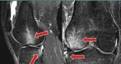 csontvelő ödéma a térd mi ez a térd artrózisának legújabb kezelései