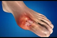 burgonya folyamatok ízületi fájdalomra