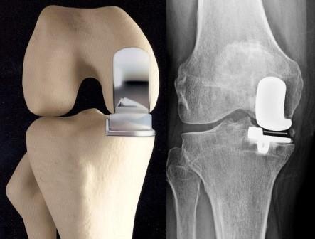 a térd artrózisa