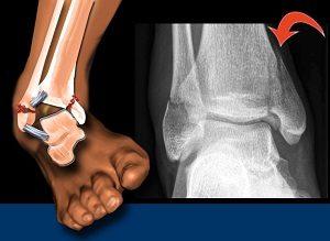 Boka csontritkulás kezelése törés után. Fontos kérdések a csonttörés gyógyításáról