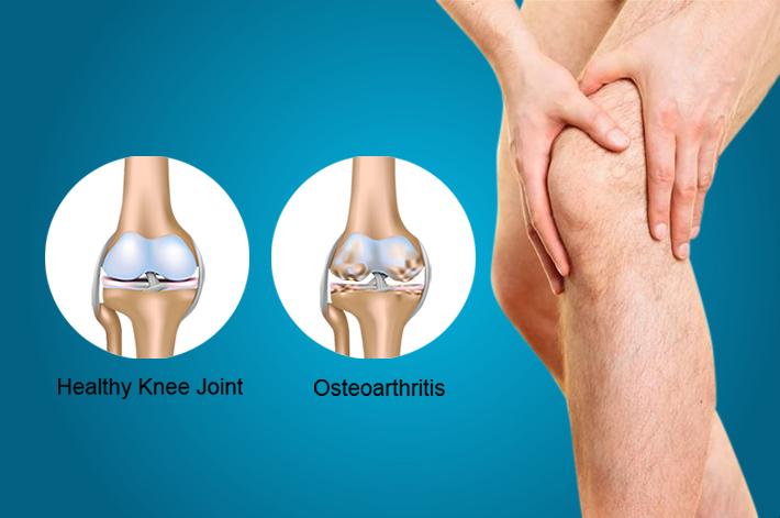 az artrózisos gyógymódok hatékony kezelése egyedi ízületi kezelés