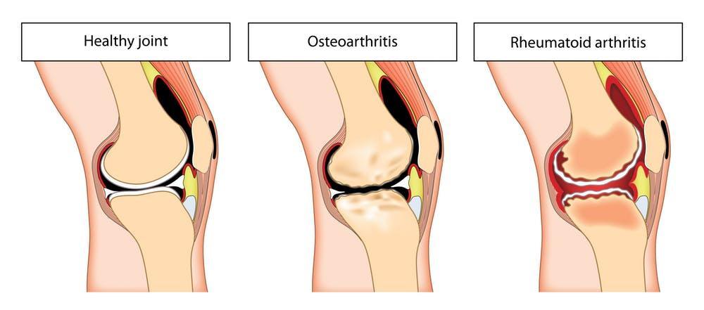 térdkészítmények arthroso-arthritis)