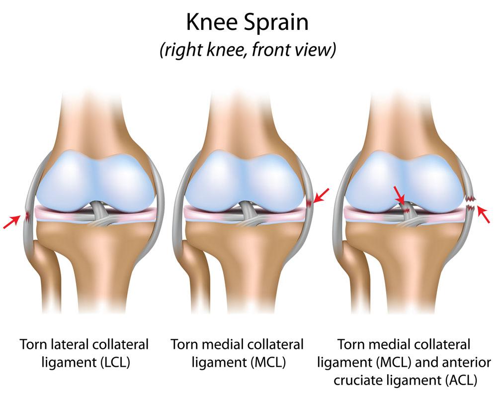 A térd meniscus kezelése