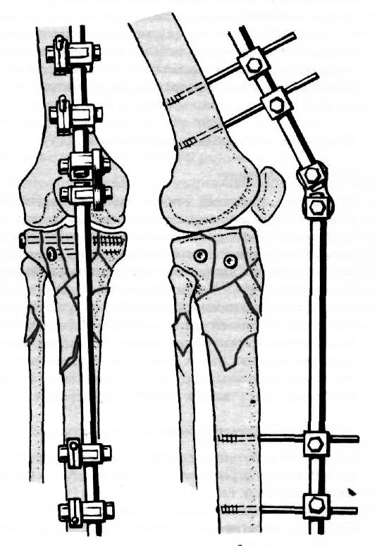 sarok artrózisának kezelési rendje