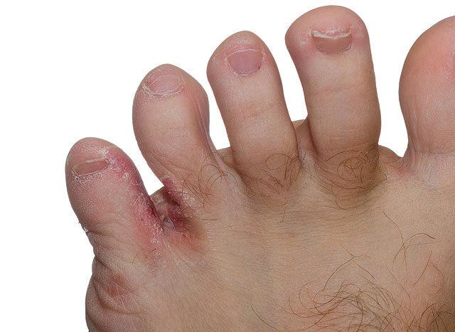 a lábujjak fájnak)