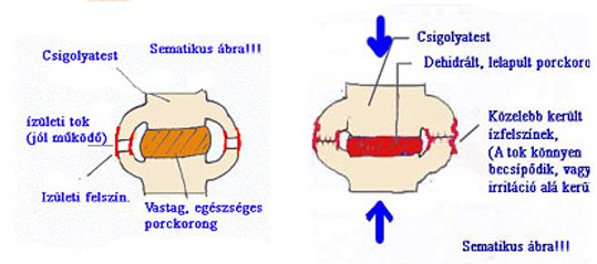 ágyéki porckorongsérv masszázs)