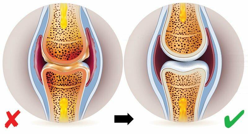ízületi fájdalmak, artrózis esetén